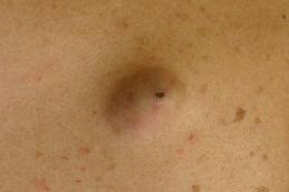 ①手術前背中に生じた直径3cm程の粉瘤です。中心部にヘソが確認できる。