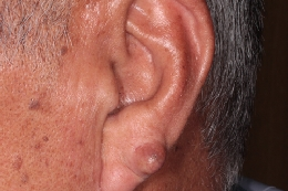 ①手術前耳たぶに生じた8mmの粉瘤。くり抜き法だと皮膚がたるむため単純切除し縫合。