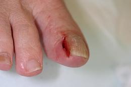 ②部分抜爪指の根元で麻酔をしたのち、陥入している爪を部分的に抜きます。