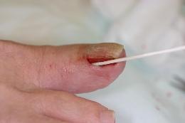 ③フェノール処理フェノールという薬品で爪の生える元を処理します。